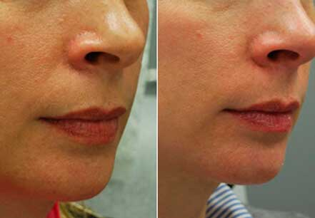 Young woman's face, before and after botox treatment. Lips. Patient 16 (right side view)