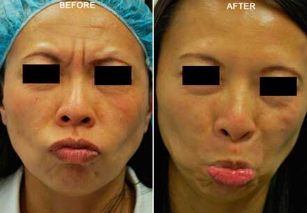 Young woman's face, before and after botox treatment. Forehead, eyelids. Patient 17 (front view)
