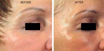 Old female face before and after crow's feet treatment. Wrinkles on the outer corner of the eyes. Patient 1