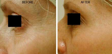 Woman's face before and after crow's feet treatment. Wrinkles on the outer corner of the eyes. Patient 2 (left side)