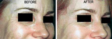 Woman's face before and after crow's feet treatment. Wrinkles on the outer corner of the eyes. Patient 3 (right side)