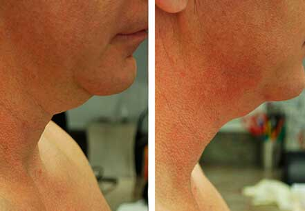 DOUBLE CHIN REMOVAL. BEFORE and AFTER PHOTOS: patient (right side view)