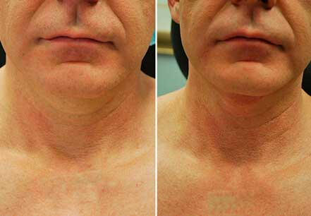 DOUBLE CHIN REMOVAL. BEFORE and AFTER PHOTOS: patient (frontal view)