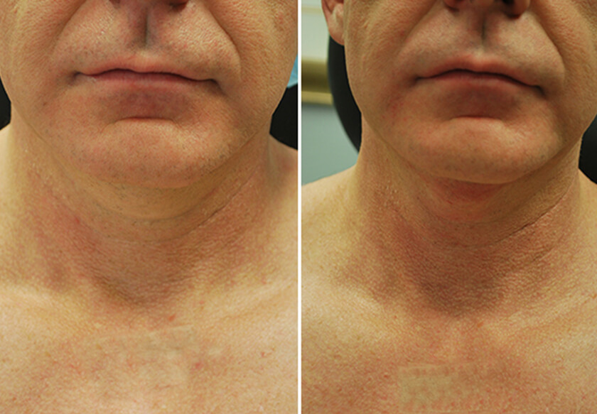 Double Chin Removal Before Amp After Photos