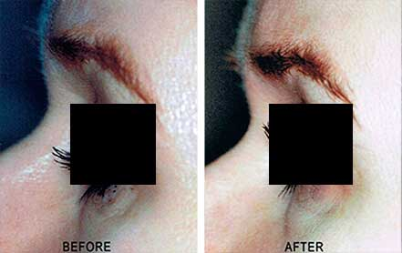 Young woman's face before and after eyelash enhancement. Eye, left side