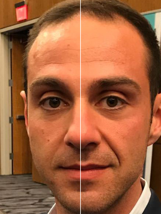 SKIN TIGHTENING. BEFORE And AFTER PHOTOS: Female patient (frontal view)