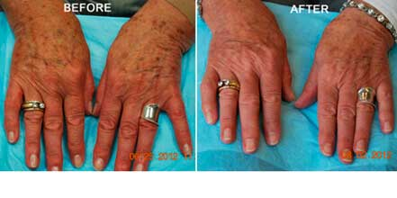 FOTOFACIAL RF. BEFORE and AFTER PHOTOS: Woman (hands; top view)