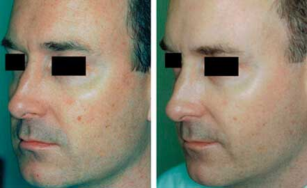 FOTOFACIAL RF. BEFORE and AFTER PHOTOS: Male (face; left side, oblique view)