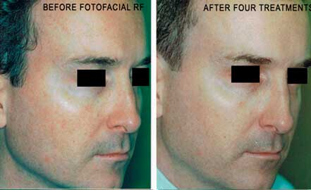 FOTOFACIAL RF. BEFORE and AFTER PHOTOS: Male (face; right side, oblique view)