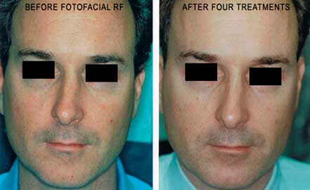 FOTOFACIAL RF. BEFORE and AFTER PHOTOS: Male (face; frontal view)