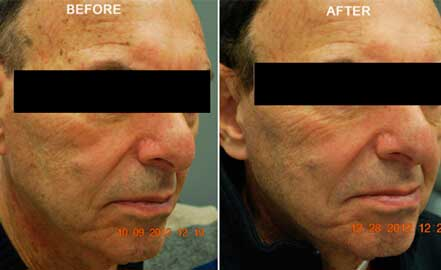 FOTOFACIAL RF. BEFORE and AFTER PHOTOS: Man (face; right side, oblique view)