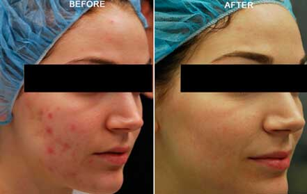 Young woman's face, before and after Fractora radio refrequency treatment. Face, right cheek - patient 7