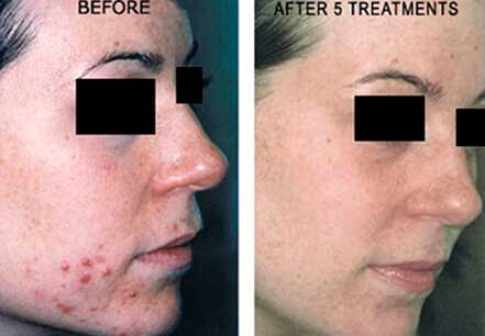 Young woman's face, before and after Fractora radio refrequency treatment. Face, right cheek - patient 9