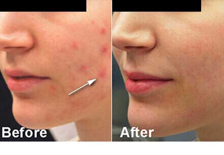 Young woman's face, before and after Fractora radio refrequency treatment. Face, left cheek - patient 10