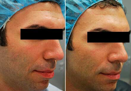 Male face, before and after Fractora radio refrequency treatment. Face, right cheek - patient 11