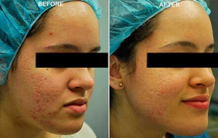 Young woman's face, before and after Fractora radio refrequency treatment. Face, forehead, right cheek - patient 3