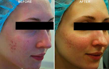 Young woman's face, before and after Fractora radio refrequency treatment. Face, right cheek - patient 5