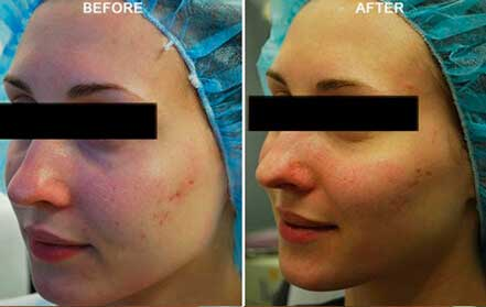 Young woman's face, before and after Fractora radio refrequency treatment. Face, left cheek - patient 5