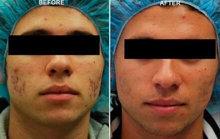 FRACTORA RF - Before and After Treatments Photos: Male (frontal view); patient 4