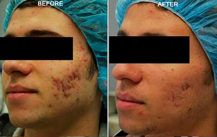 FRACTORA RF - Before and After Treatments Photos: Male (left side, oblique view); patient 4