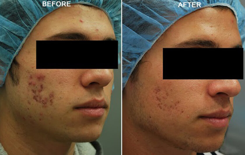 Fractora Rf Before And After Photos Nyc