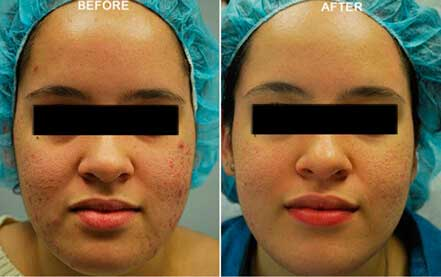 LARGE PORES. BEFORE & AFTER PHOTOS - Female (frontal view); patient 1