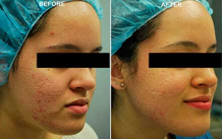 LARGE PORES. BEFORE & AFTER PHOTOS - Female (right side, oblique view); patient 1
