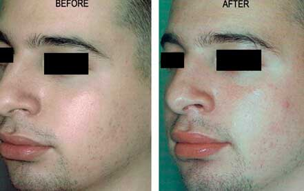 LARGE PORES. BEFORE & AFTER PHOTOS - Male (left side, oblique view); patient 2