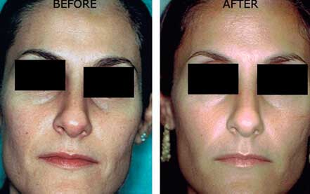 LARGE PORES. BEFORE & AFTER PHOTOS - Female (frontal view); patient 3