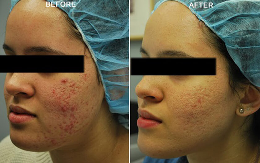 LARGE PORES BEFORE & AFTER PHOTOS