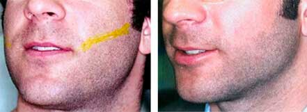LASER HAIR REMOVAL. Before and After Photos: Male, face (oblique view)