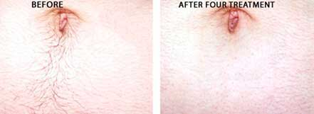 LASER HAIR REMOVAL. Before and After Photos: Patient, tummy