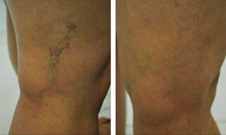 Patient leg veins, before and after non-surgical leg vein removal, legs - back view, patient 1