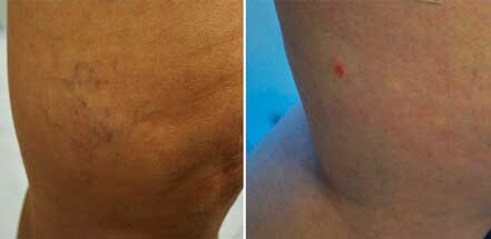 Patient leg veins, before and after non-surgical leg vein removal, legs - back view, patient 3