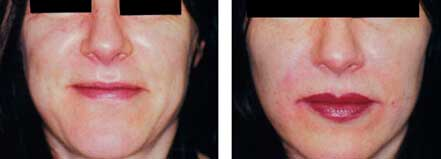 LIP ENHANCEMENT - BEFORE & AFTER PHOTOS: Female (frontal view) patient 1