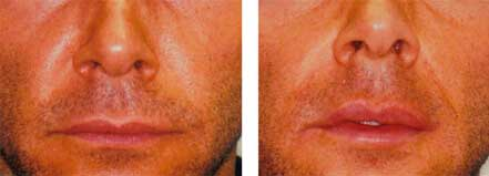 LIP ENHANCEMENT - BEFORE & AFTER PHOTOS: Male (frontal view) patient 2