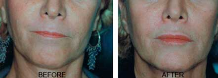 LIP ENHANCEMENT - BEFORE & AFTER PHOTOS: Female (frontal view) patient 4