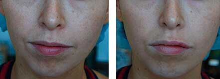 LIP ENHANCEMENT - BEFORE & AFTER PHOTOS: Female (frontal view) patient 5