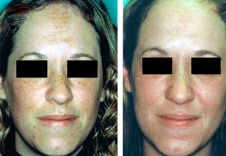 MELASMA. BEFORE and AFTER PHOTOS - Female patient, face (frontal view); patient 1