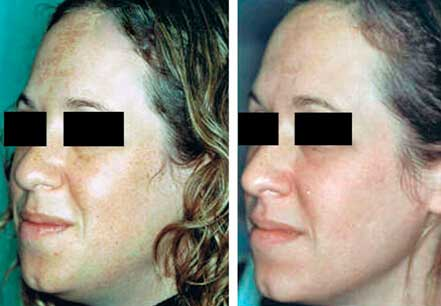 MELASMA. BEFORE and AFTER PHOTOS - Female patient, face (left side, oblique view); patient 1