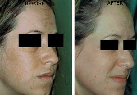 MELASMA. BEFORE and AFTER PHOTOS - Female patient, face (right side, oblique view); patient 1