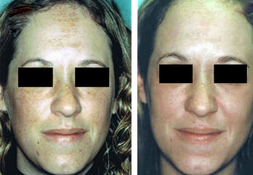 Melasma Before Amp After Photos