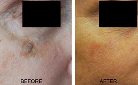 Patient's face, before and after mole removal treatment. Face, under right eye, patient 2