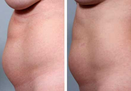 Female abdomen, before and after non surgical fat reduction treatment. Abdomen, left side view - patient 1