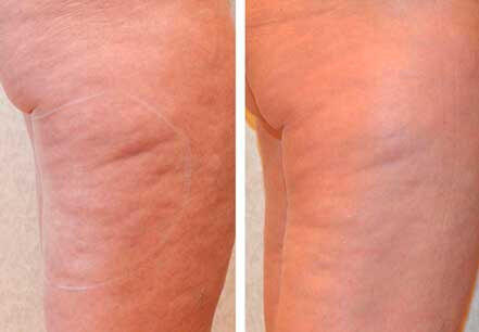 Woman's legs, before and after non surgical fat reduction treatment. Legs, right side view - patient 3