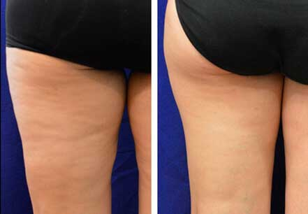 Woman's legs, before and after non surgical fat reduction treatment. Legs, back view - patient 4