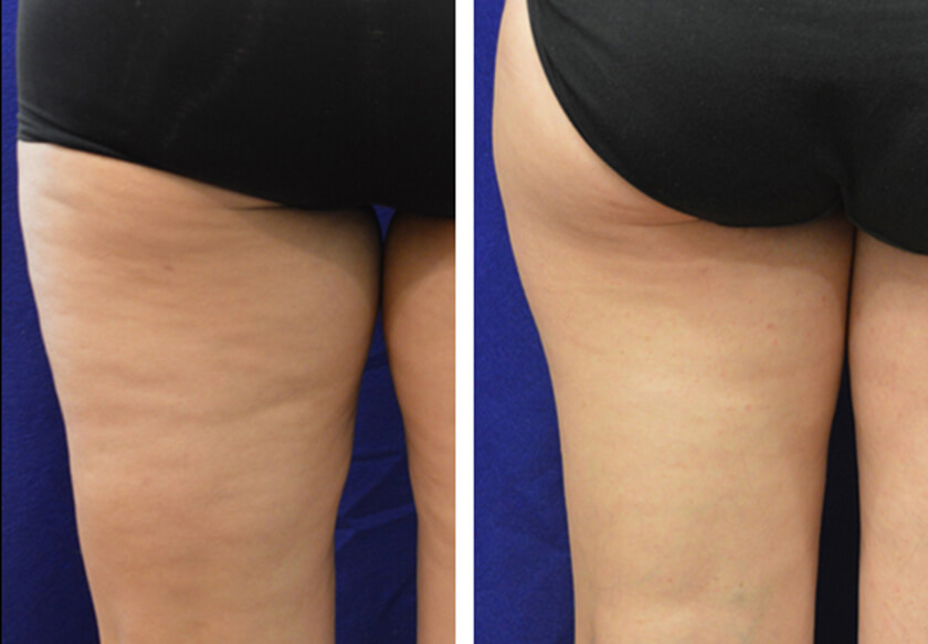 Non Surgical Fat Removal Photos Before And After Nyc