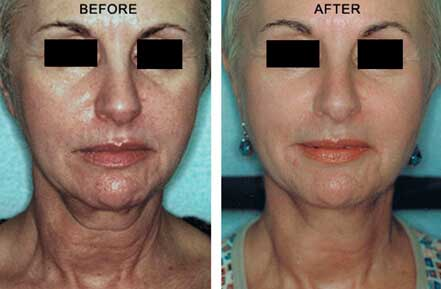 Old female neck, before and after non-surgical necklift treatment. Neck. Patient 1 (front view)