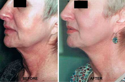 Old female neck, before and after non-surgical necklift treatment. Neck. Patient 1 (left side view)