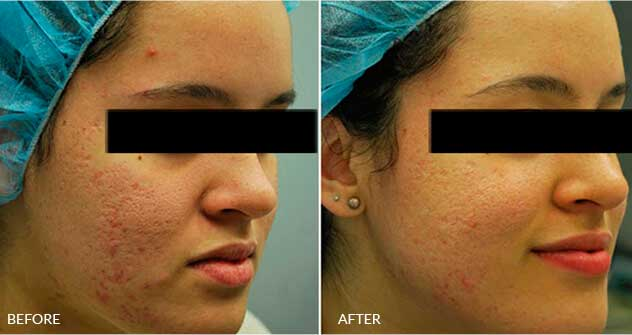 Acne-Scars: Before and After Treatment Photos - Female (oblique view)